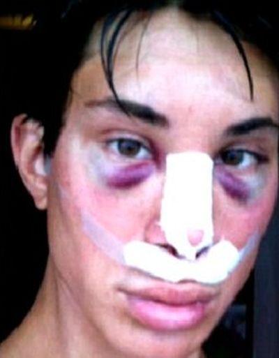 Жертва пластической хирургии (11 фото)