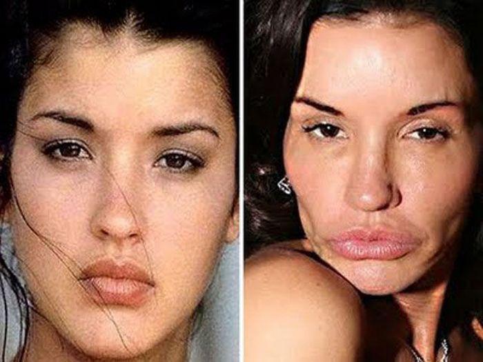 Жертвы пластической хирургии (40 фото)