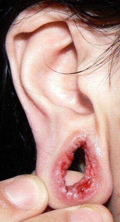 Во что превратятся уши, если извлечь растягивающие тоннели (3 фото)