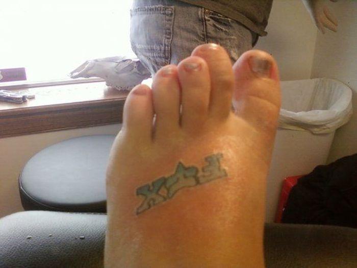 Отторжение татуировки из-за нестерильного инструмента (8 фото)