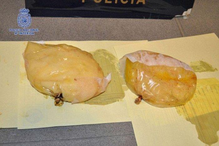 Кокаиновые импланты для транспортировки наркотиков через границу (2 фото)
