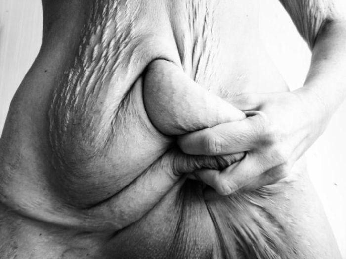 Последствия похудения на 50 килограмм (4 фото)
